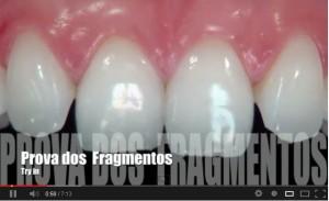 videofacetas_dentistacuritiba_estetica